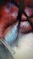 distorted lip
