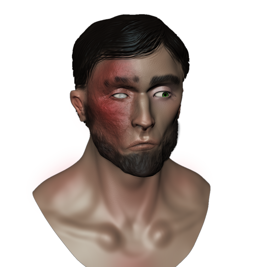 Burned by Montyok