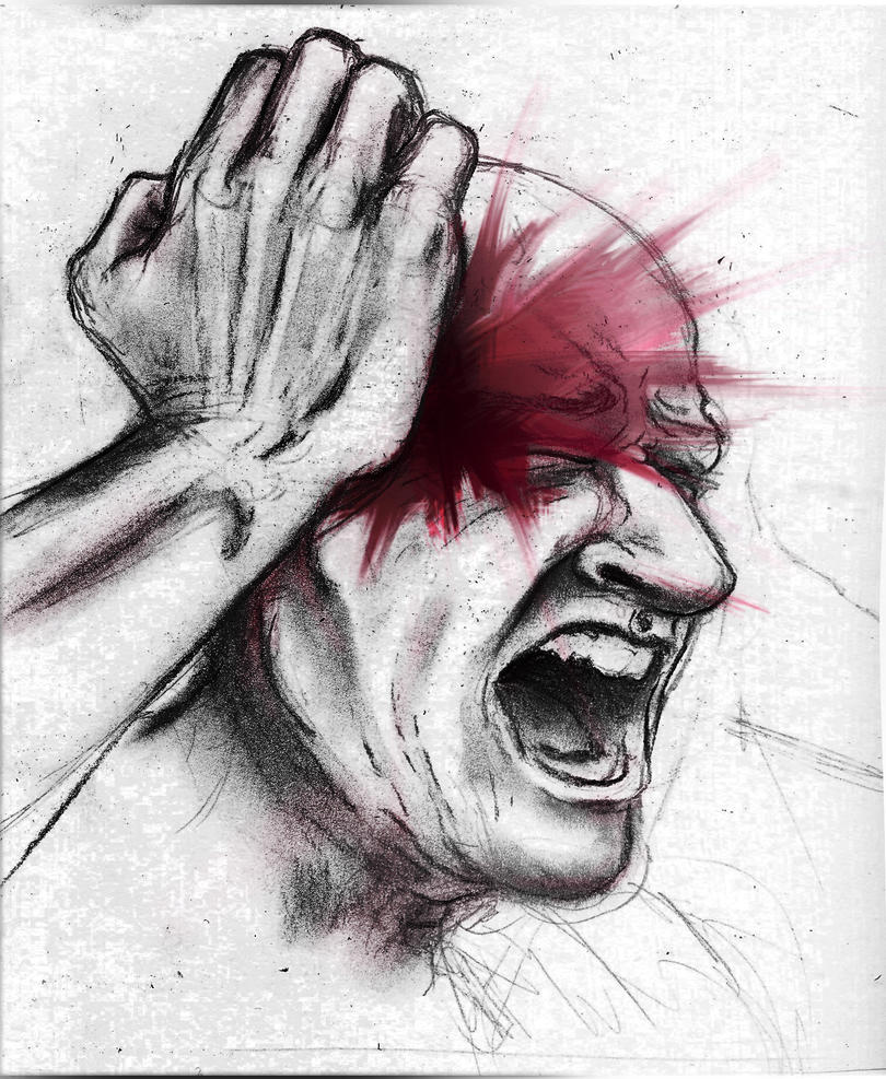 Showing picture aka cluster headaches