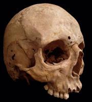 Skull4 by ChristasVengel-stock