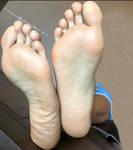 NBM Legs