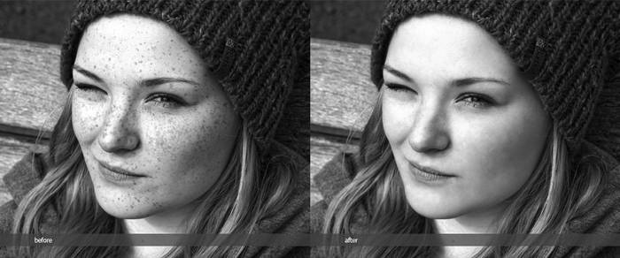 retouched freckles