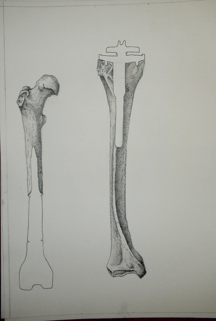 My knee Femur and Tibia by stefanpaulrust
