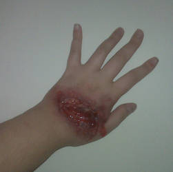 Glass in hand infection 5