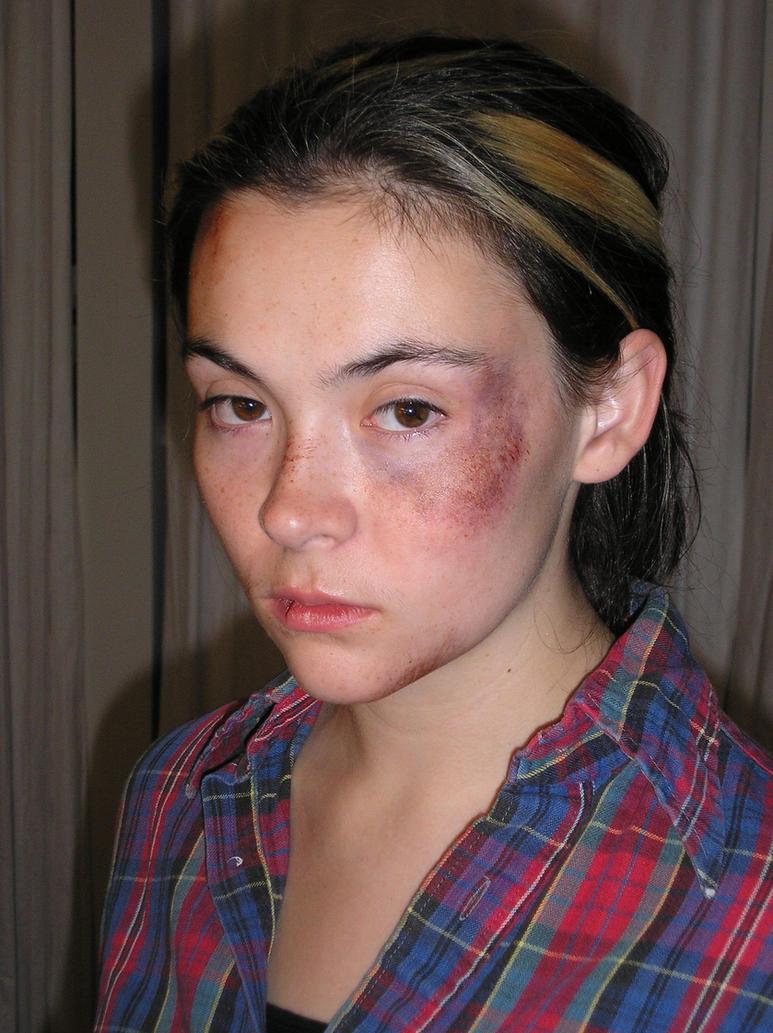 Bruise makeup by baronvonfogel on deviantart bruise makeup by baronvonfogel baditri Choice Image