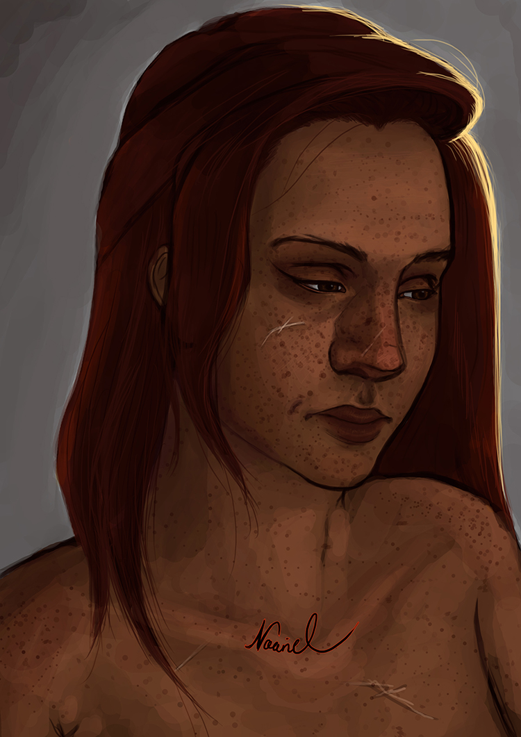 Freckels by Naariel