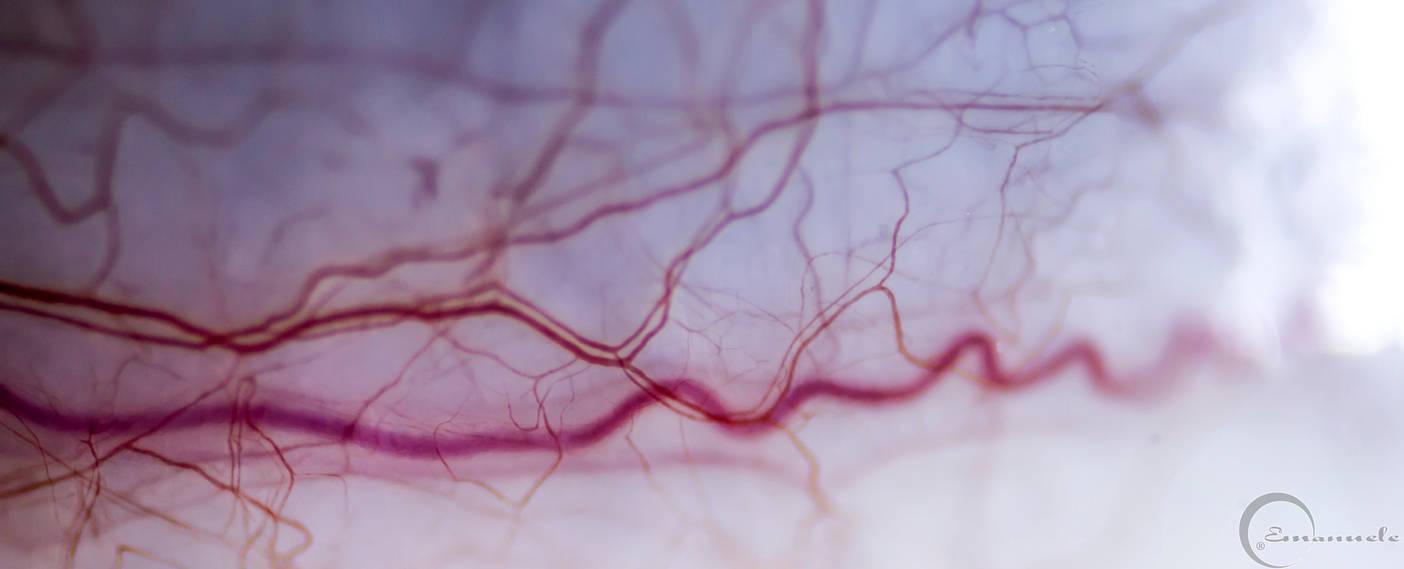 Capillari occhio by mancae90