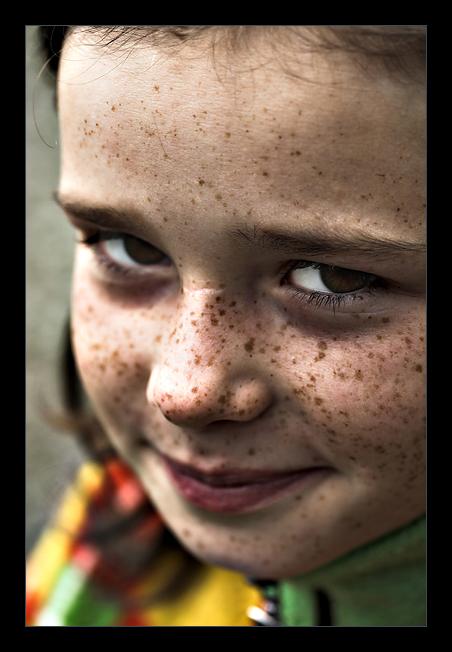 Çilli Yüzler Freckles_by_Iedu