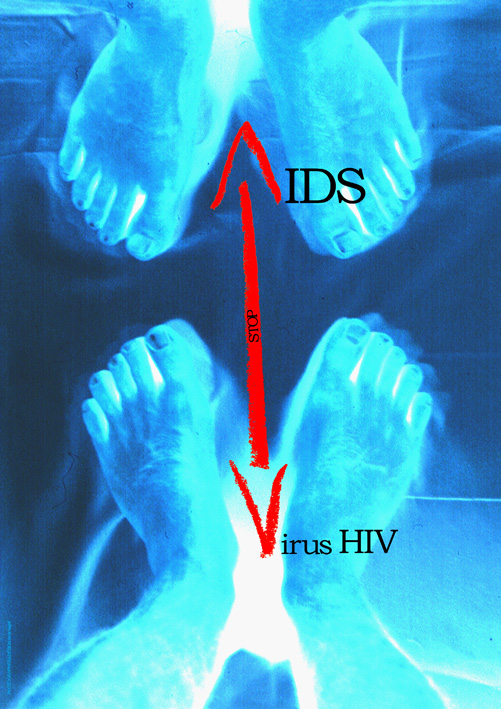 Aids 2 by najafi