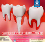 dental Implantation ad
