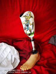 Gluby sur prothese
