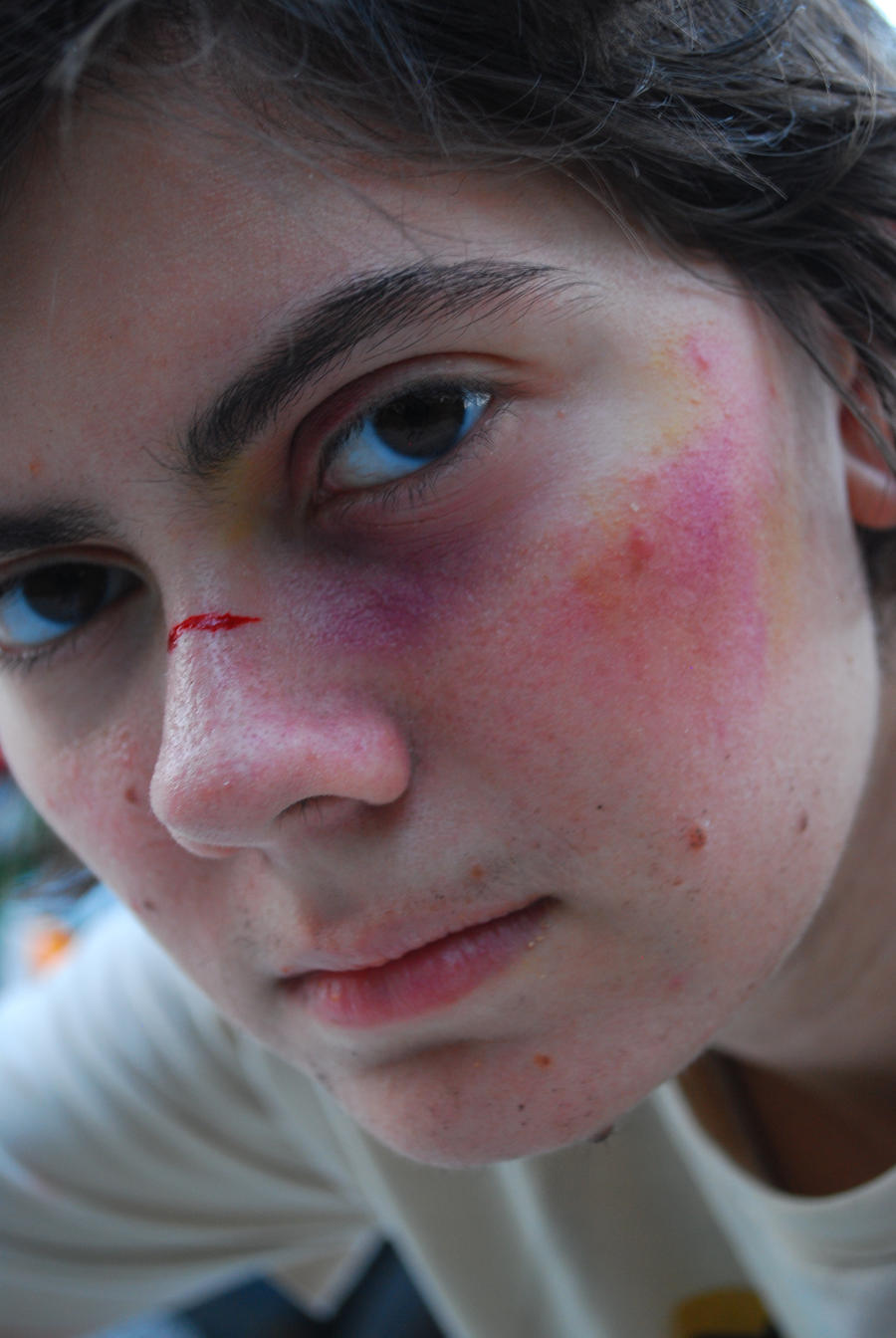 how to get rid of bruises quickly on face