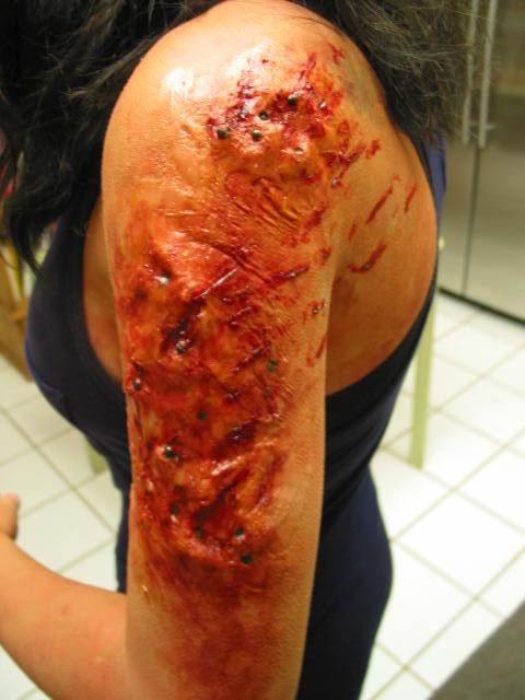 Shotgun arm wound by Lostinfog88