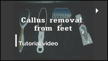 Callus Removal from Feet by wanderer1988