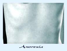 Anorexsick by annoyincustomer