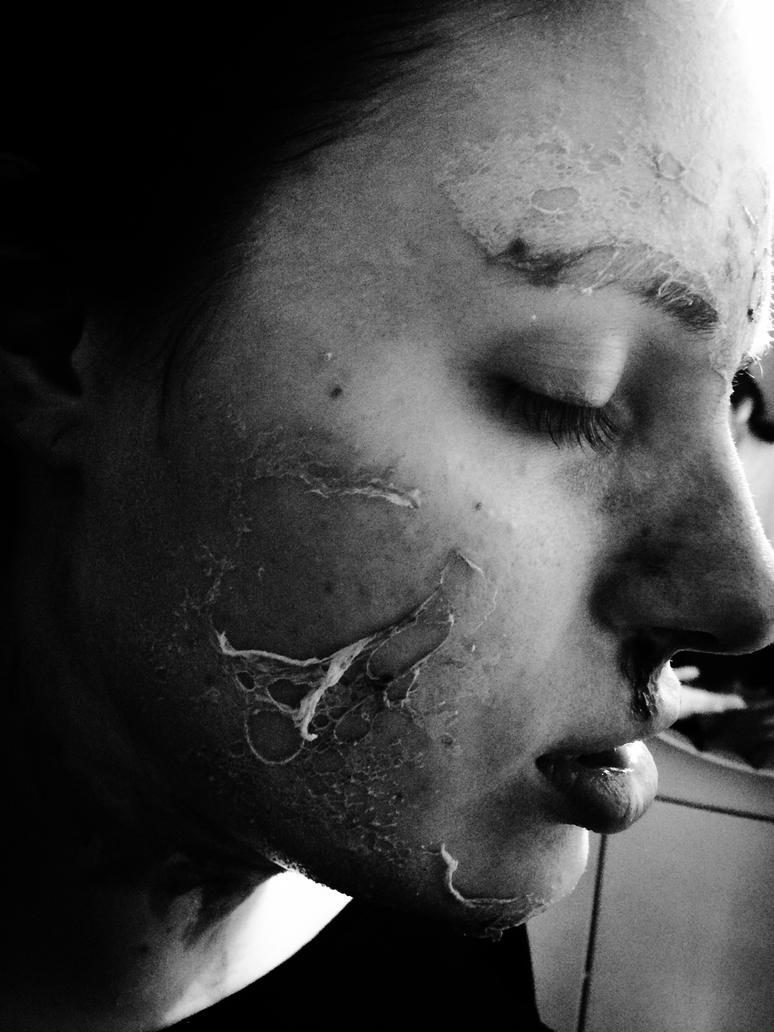 Peeling by xRaiyax