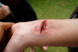Healing wound by RockingMusic