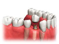 Dental implants Center by drwaliapatialas