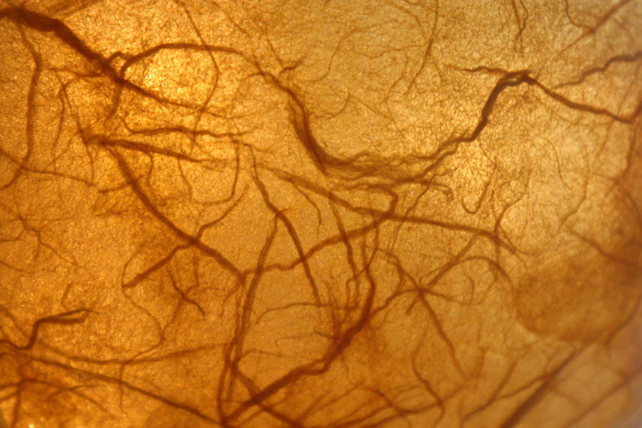 Veins by MyTini
