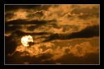 Sunburn 1