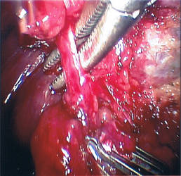 Artery? by kamikashin
