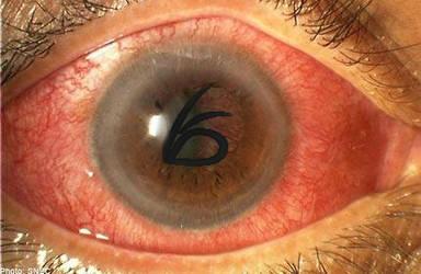 Olaf's Eye