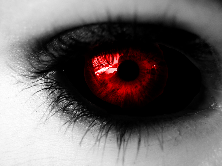 The gallery for --> Red Eye Crying Blood