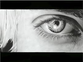 Moforsnow's eye