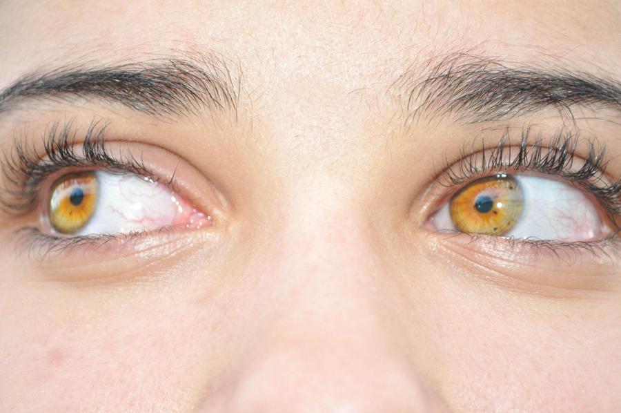 Sun Colored Eyes by BabyGirlTJ on DeviantArt