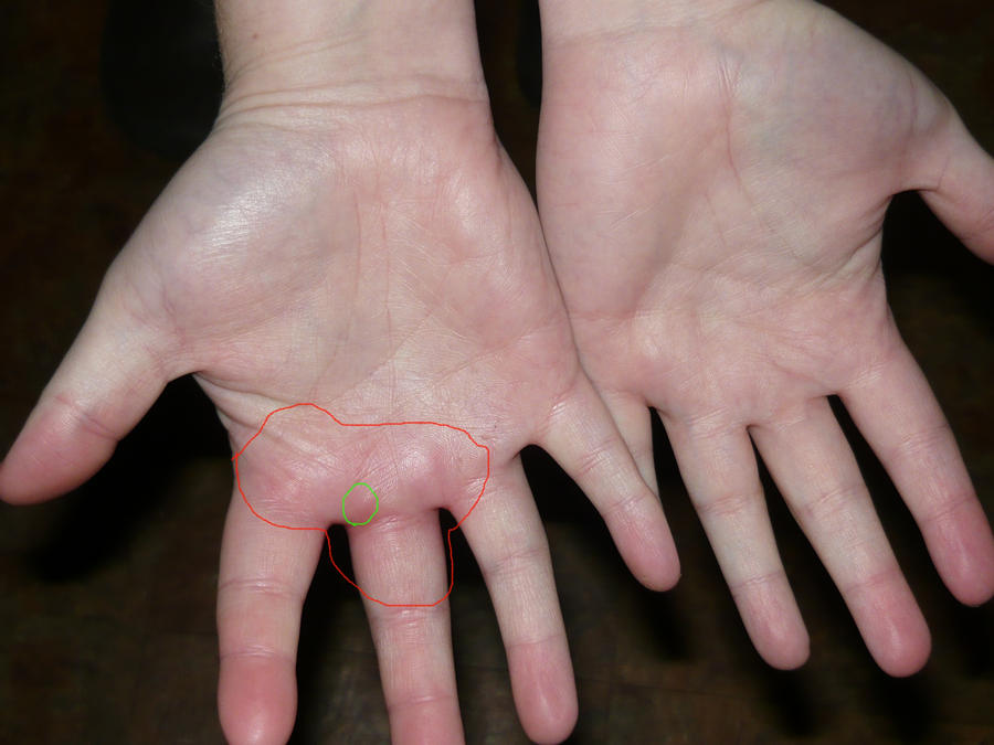 by hand inside swelling thumb