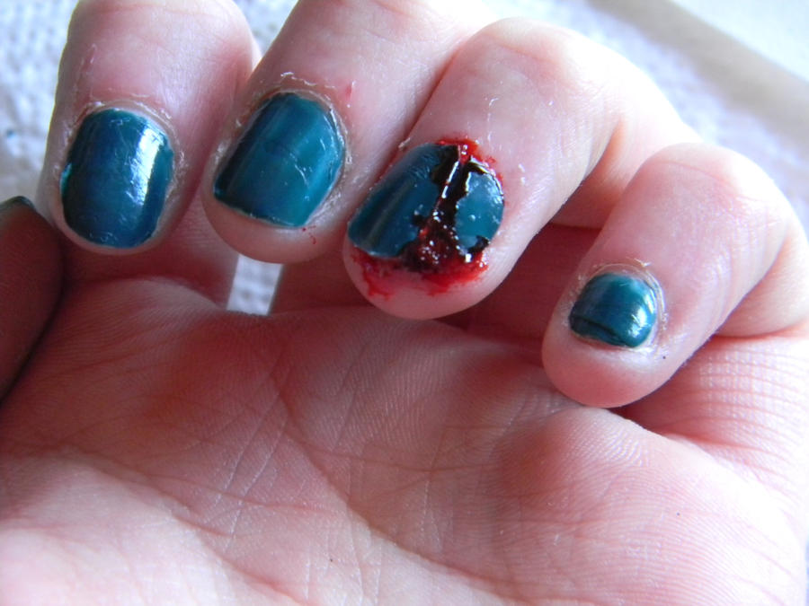 I broke a nail by Temerice on DeviantArt