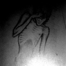 Anorexic by VitiS-Lololo