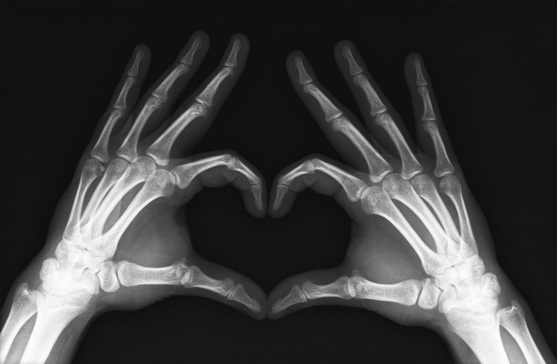 X Ray Heart By Mmattes On Deviantart