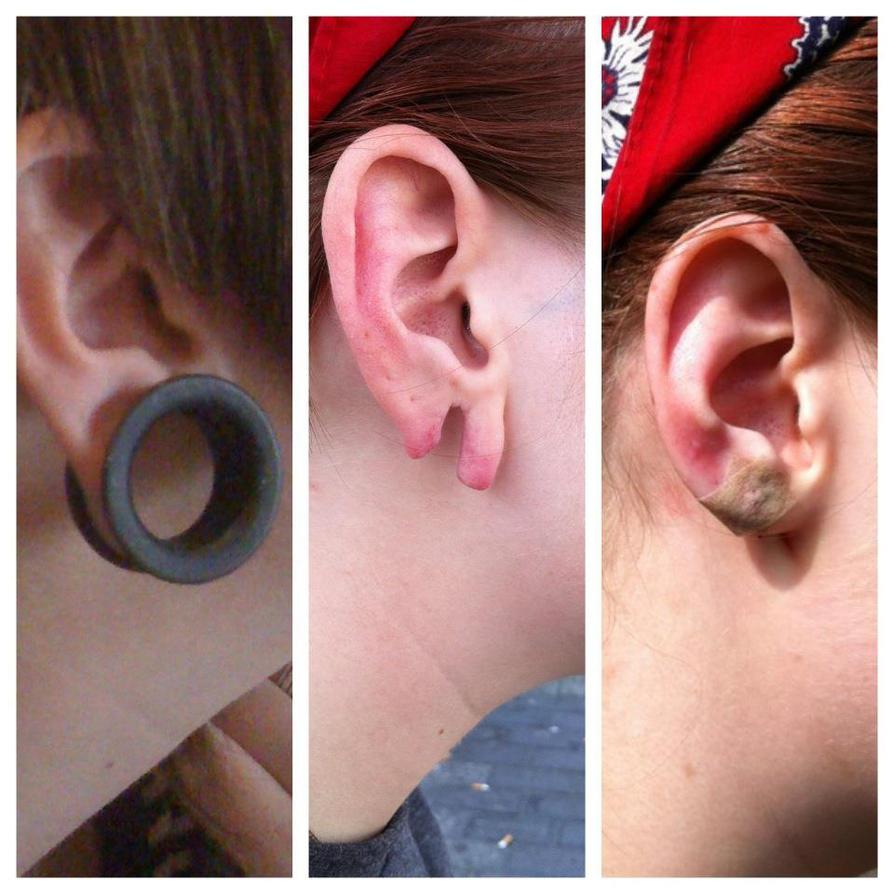 ear streching gone wrong by SamiraSMEGMA on DeviantArt