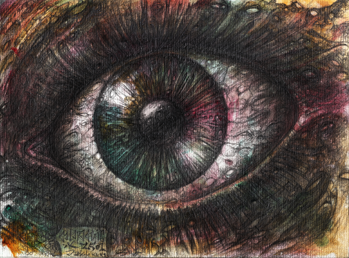 Cataract IC