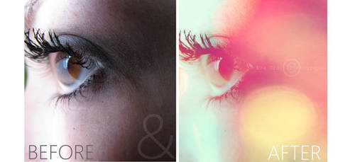 Eye (Before and After)