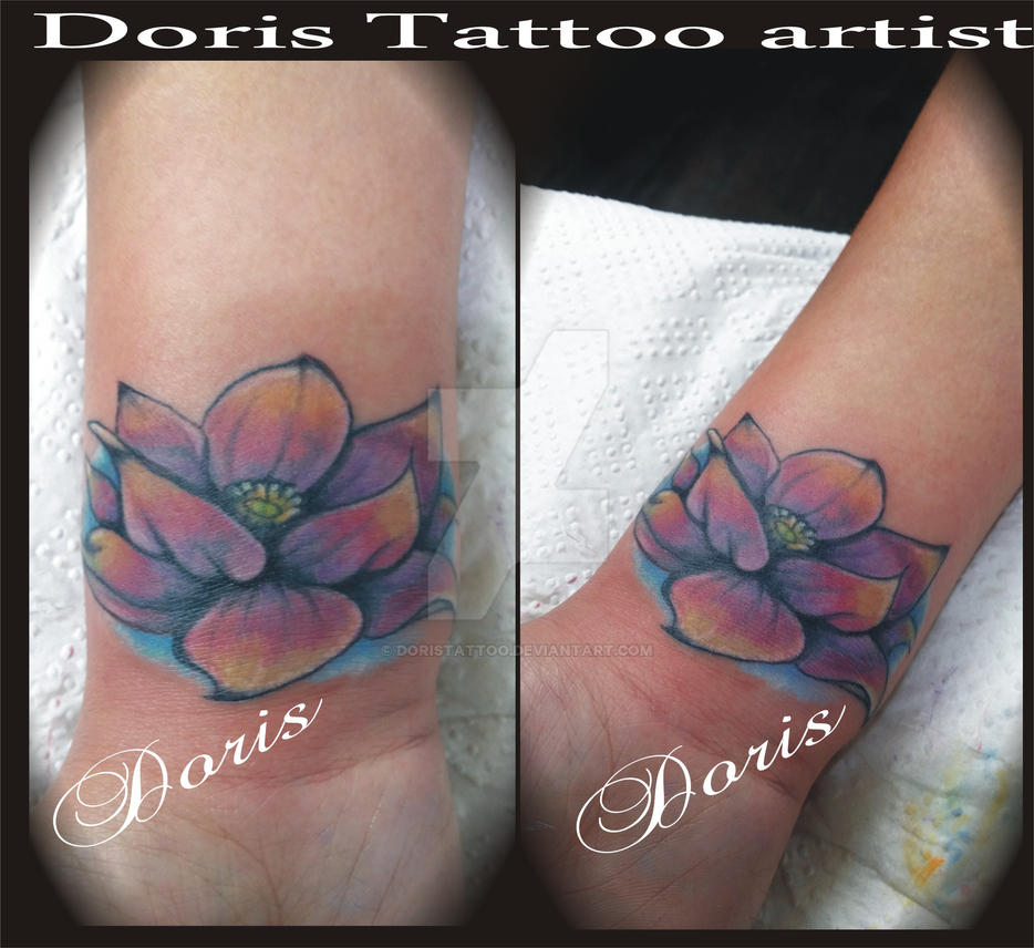 Lotus Cover Up Tattoo By Doristattoo On Deviantart