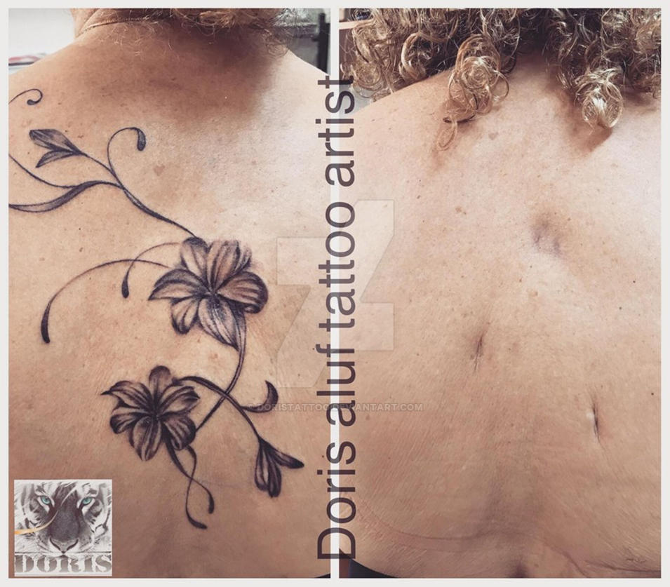 f54baed3d Flowers lily tattoo scars cover by doristattoo on DeviantArt