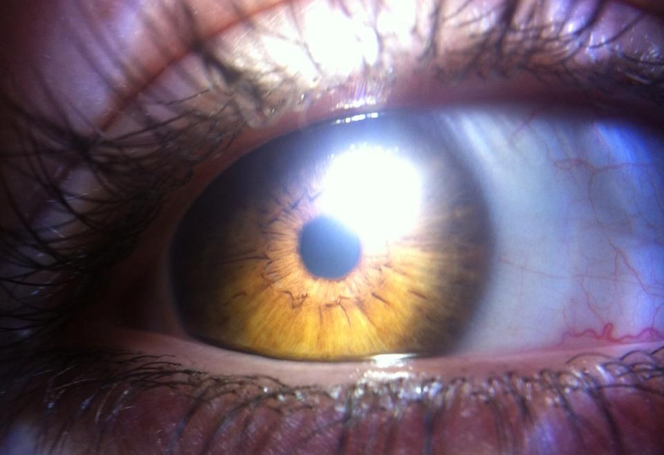 eye 3 by xXHallowHeartXx