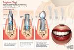 infographic teeth implant
