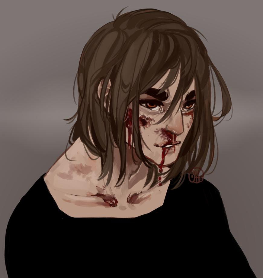 Dead by R0BUTT