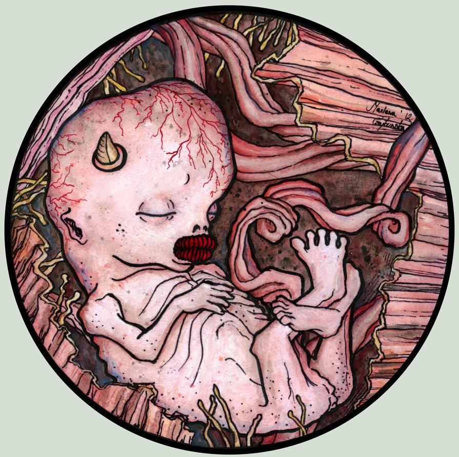 Fetus by Phronemophobiaa