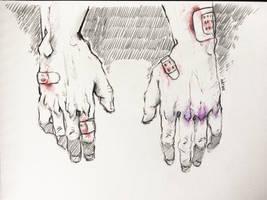 stitches by Huntahr