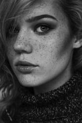 Freckles are beauty by milleviola