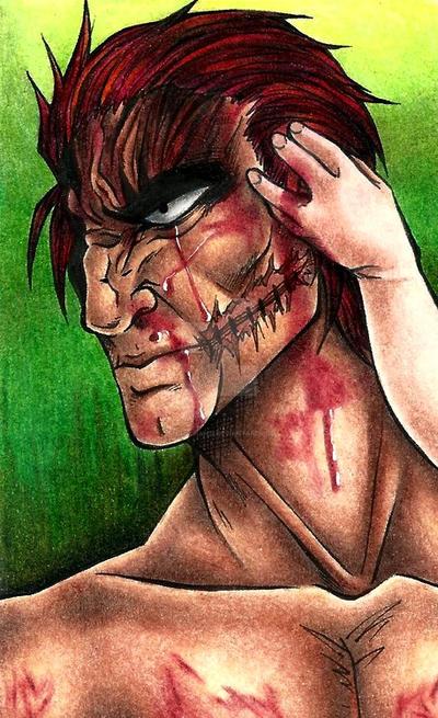 Fresh Battle Scars by animechan21