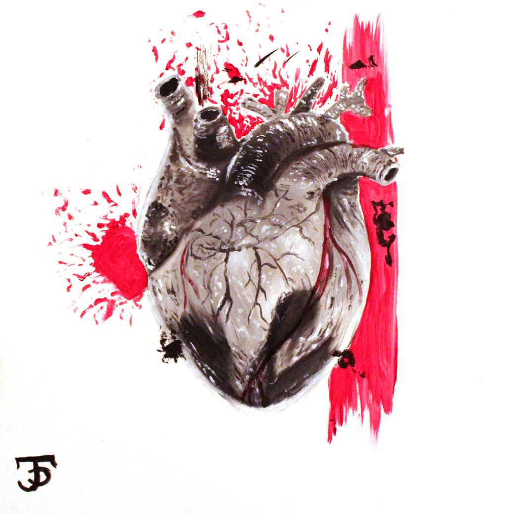 Trash Polka Skull By Mcrdesign On Deviantart: Trash Polka Anatomical Heart By Jdelmontetattoos On DeviantArt