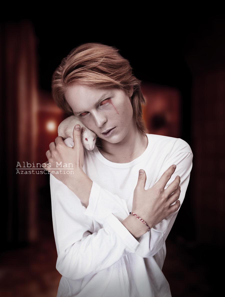 Albinos Man by 25clad35