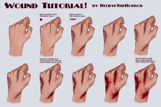 Wound Tutorial