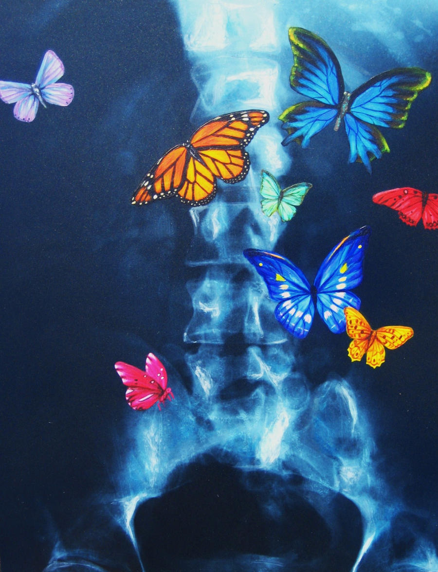 Butterflies In Your Stomach by yarnuh on deviantART