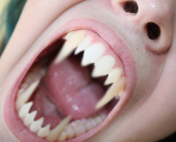 werewolf teeth by lexy3643 on DeviantArt